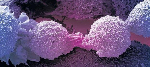 Cellula immunitaria che uccide la maggior parte dei tumori scoperti per caso dagli scienziati britannici in una svolta importante
